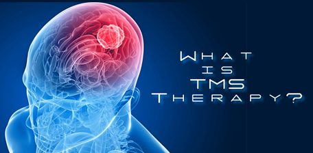 2015-1120 TMS Therapy
